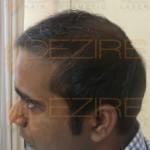 hair regrowth oil ayurvedic