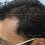 hair replacement in pune