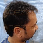 hair replacement systems cost