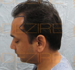 hair replacement systems reviews