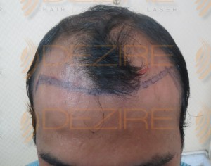 hair restoration latest technology