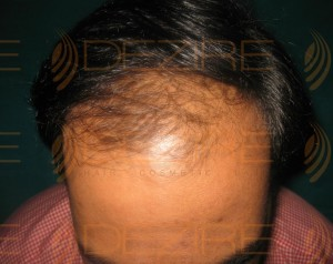 hair restoration low cost
