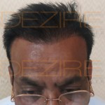hair restoration service contact