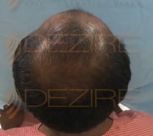 hair restoration specialist near me