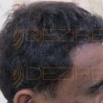 hair root function in men