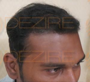 hair specialist in pune kothrud
