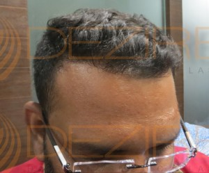 hair surgery in India