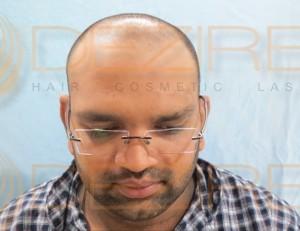 hair surgery types