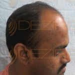 hair transplant before after india