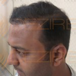 hair transplant before and after 5000 grafts