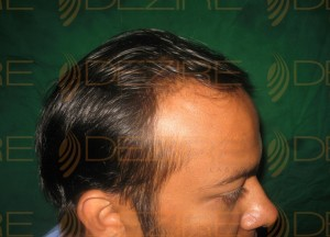 hair transplant benefits and side effects