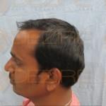 hair transplant clinic pune pune, maharashtra