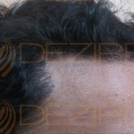 hair transplant cost india