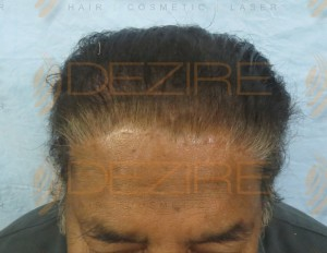hair transplant cost india in world