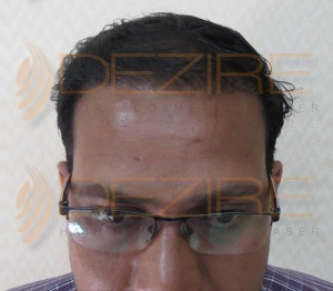 hair transplant donor area pain