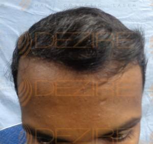 hair transplant good or bad idea