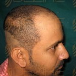 hair transplant in pune low cost
