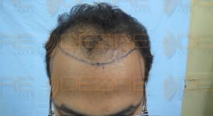 hair transplant ke side effect