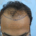 hair transplant ke side effect