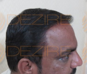 hair transplant options in india