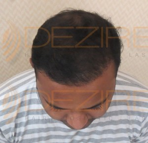 hair transplant pictures after 3 months