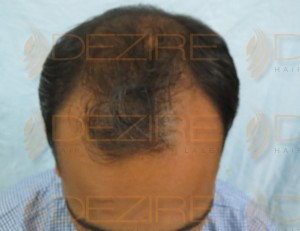 hair transplant pictures day by day