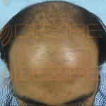 hair transplant price list
