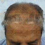 hair transplant price list