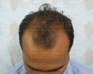 hair transplant procedure explained