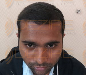hair transplant progress pictures