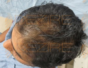 hair transplant prp treatment