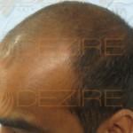 hair transplant pune reviews