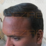 hair transplant pune reviews