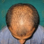 hair transplant side effectshair transplant side effects