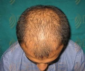 hair transplant side effectshair transplant side effects