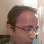 hair transplant surgeons reviews