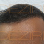 hair transplant surgery how much cost
