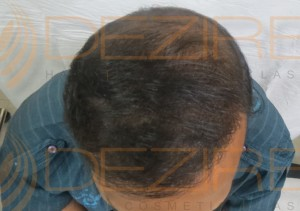 hair transplant surgery how rupees