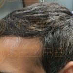 hair transplant surgery near me