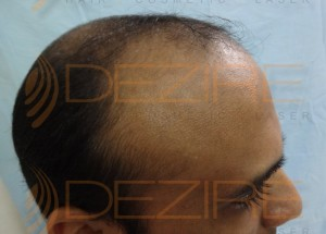 hair transplant surgery pictures