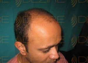 hair transplant surgery price in india