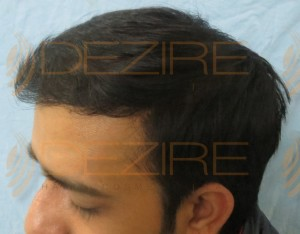 hair transplant timeline photos