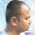 hair transplant video