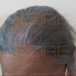 is female pattern baldness reversible