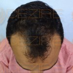 is hair transplant effective in india