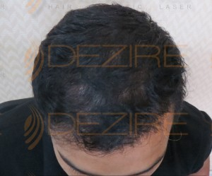 is hair transplant permanent solution