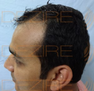 is hair transplant really effective