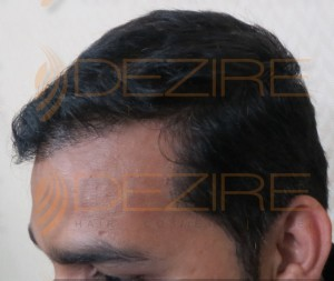 is hair transplant really permanent