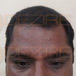 is prp necessary after hair transplant