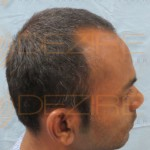 latest hair loss news